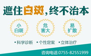 广东治疗白癜风的医院